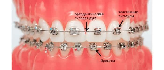 установка брекетов киев