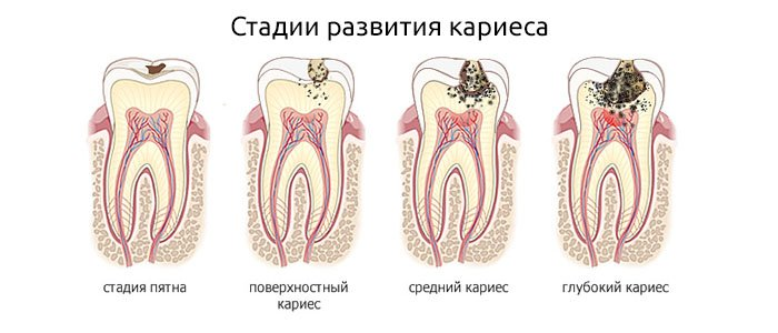 лечение кариеса киев