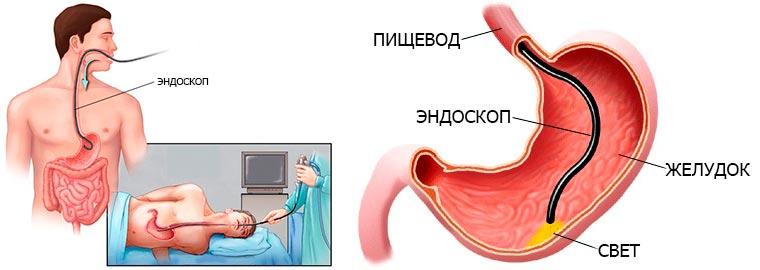Гастроскопия в Киеве