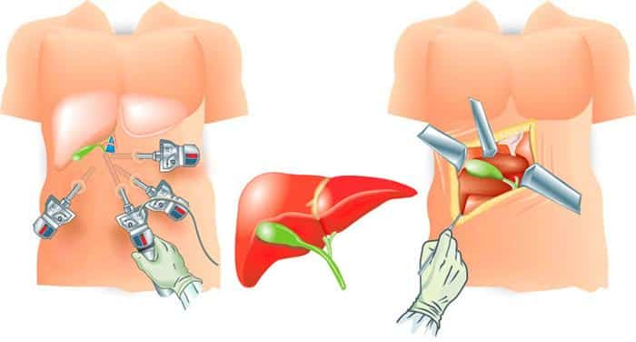 Хирургическое лечение желчнокаменной болезни