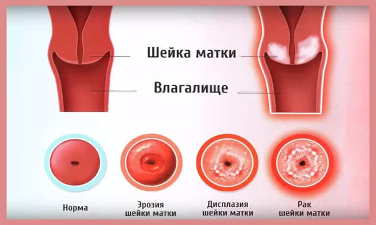 Лечение заболеваний шейки матки в ADONIS, в Киеве