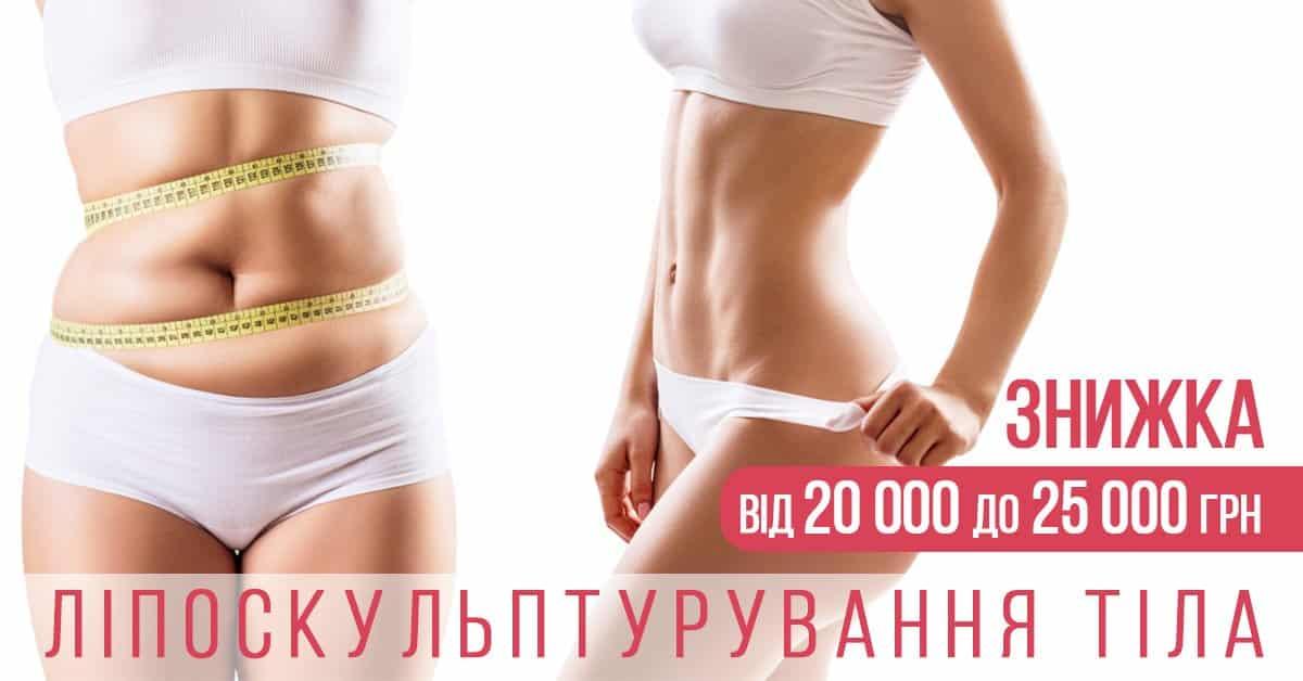 акція ADONIS Ваші омріяні форми, Київ